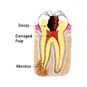 drawing of tooth